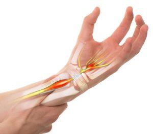 Carpal Tunnel Syndrome Hand Surgery - Gerald L. Yospur - Mesa, AZ