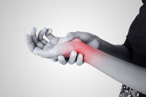 De Quervain's Hand Surgery - Gerald L. Yospur - Mesa, AZ