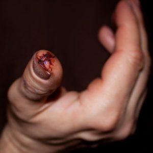Fingertip Injury Hand Surgery - Gerald L. Yospur - Mesa, AZ