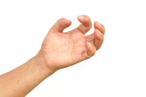 Trigger Digits Hand Surgery - Gerald L. Yospur - Mesa, AZ