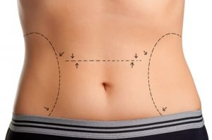 Would Liposuction or a Tummy Tuck be Better for Me?