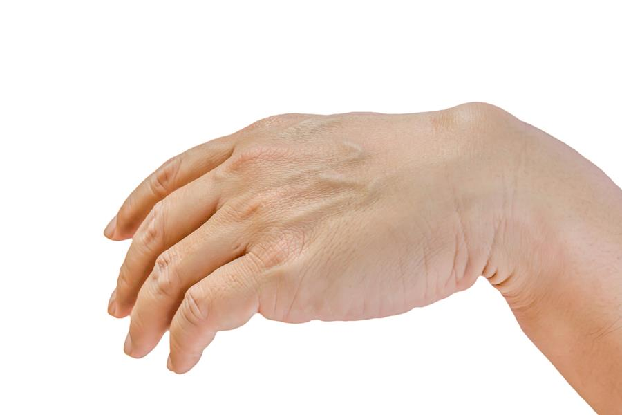 Ganglion Cyst Hand Surgery - Gerald L. Yospur - Mesa, AZ
