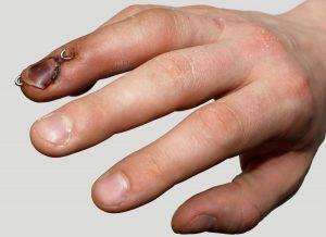 Mallet Finger - Hand Surgery - Gerald L. Yospur - Mesa, AZ