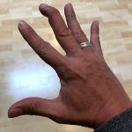What Is A Mallet Finger and How Does It Occur
