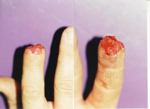 001FINGERTIP INJURIES res