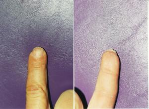 003FINGERTIP INJURIES res