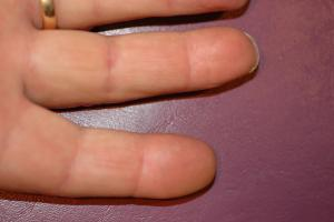 009FINGERTIP INJURIES res