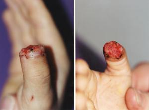 027FINGERTIP INJURIES res