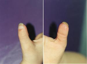 029FINGERTIP INJURIES res