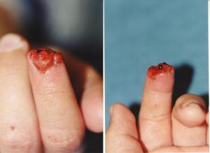 030FINGERTIP INJURIES res