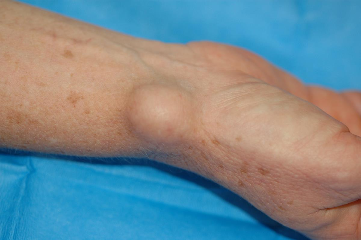 Ganglion Cysts in Mesa, Chandler, Gilbert, Tempe, and Phoenix