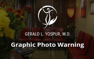 new-warning